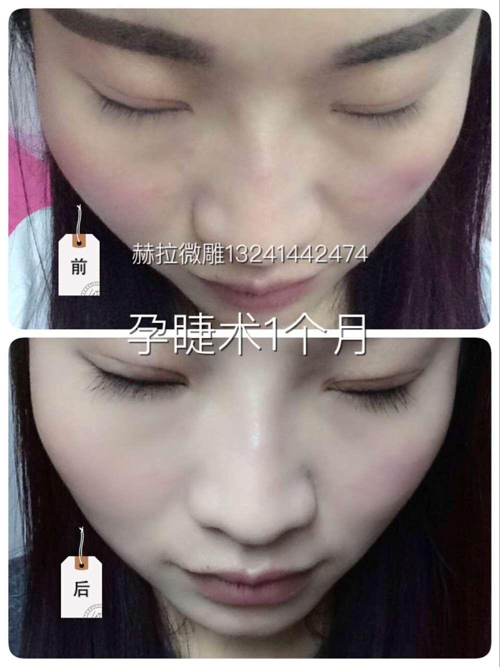 【孕睫术mts皮肤管理培训】孕睫术mts皮肤管理培训